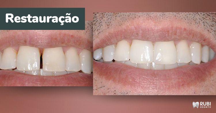 Restauração dentária em Santo André, SP - Rubi Odonto