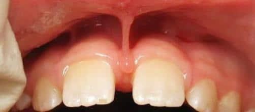 freio-labial-com-baixa-insercao-na-denticao-mista-https-goo-gl-images-x6rbqu_1117623
