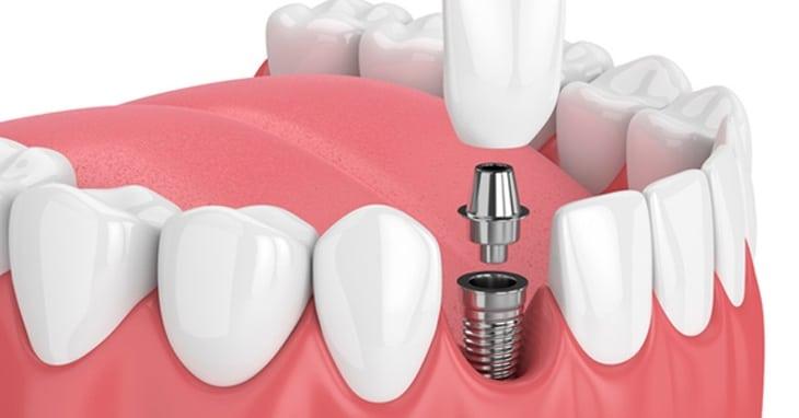 Implante dentário, preço e o que mais você precisa saber -  Rubi Odonto