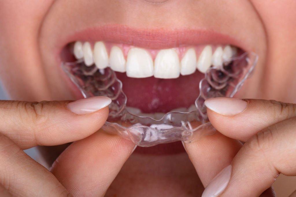 Aparelho invisível Esthetic Aligner: conheça a tecnologia que vai revolucionar o seu sorriso